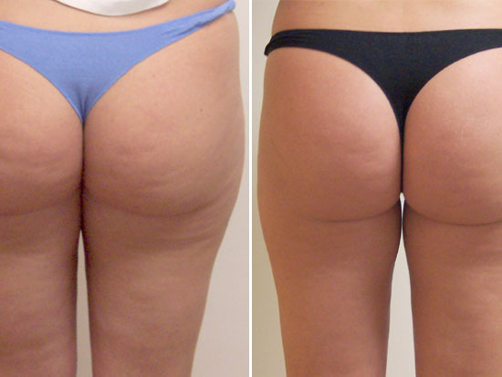 Example of cellulite treatment (before and after)